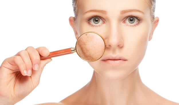 Пигментация кожи: как избавиться от проблемы