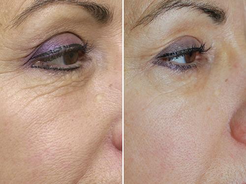 карбокситерапия фото до и после